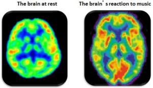 PET scans: Brain on Music