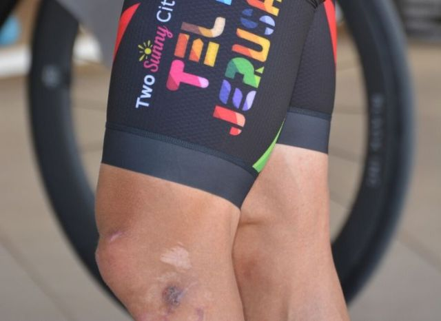 knee pain on the bike
