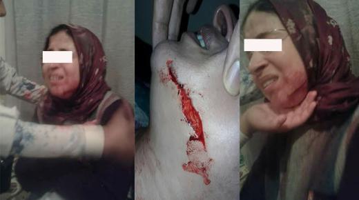 خطير بالصور.. تلميذ يشرمل وجه أستاذة بالبيضاء بسكين ويتسبب لها في جرح غائر