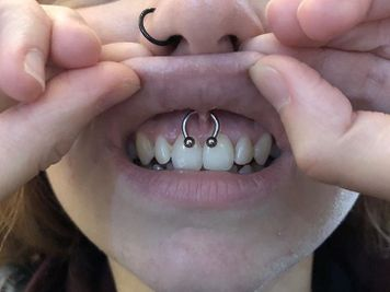 lip frenulum piercing