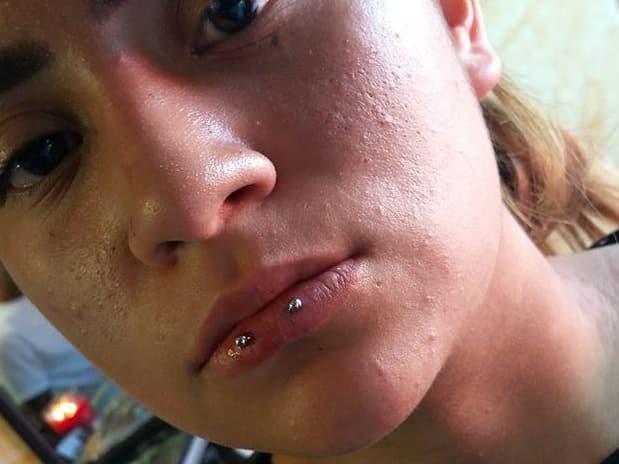 lip perforation