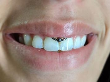 smiley piercing image