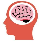 Vestibular Neuritis