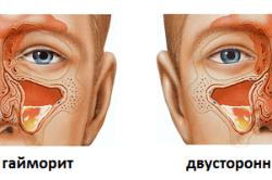Что делать при боли в носу. Причины и лечение болей в носу внутри, снаружи, кончика при нажатии или прикосновении