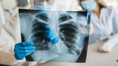 Photo of Los pulmones de pacientes con Covid-19 quedan más dañados que los de fumadores