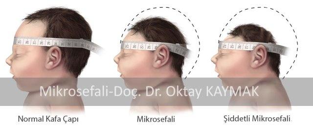mikrosefali-(-bebeğin-başının-normalden-küçük-olması)