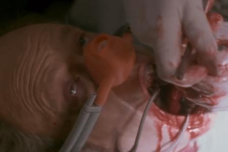 The-Dentist-1996-Film-740x493