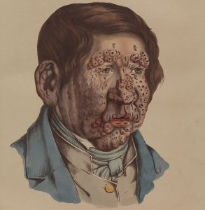 leprosy-in-art-1800s