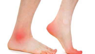 صورة العلاجات المنزلية لعلاج ألم القدمين