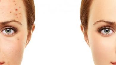 صورة طريقة ازالة الحبوب من الوجه