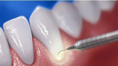 صورة علاج تسوّس الأسنان باللـّيزر