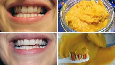 Photo of 14 طريقة لتنظيف الأسنان في المنزل