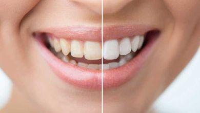صورة 15 وصفة لتبيض الاسنان في المنزل