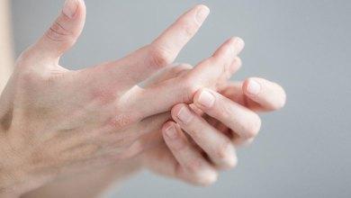 صورة أسباب إلتهاب منطقة ما بين الأصابع وطريقة العلاج