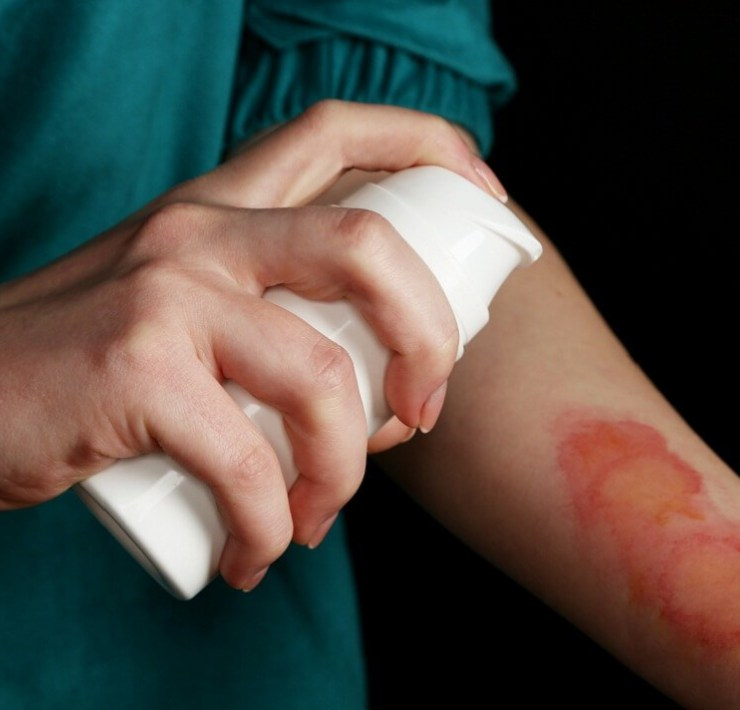 relieve burn pain