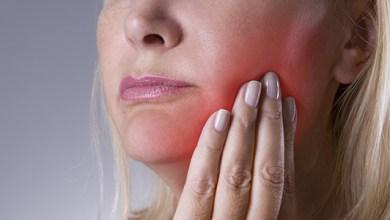 صورة علاج خراج الأسنان بهذه الطرق الطبيعية المذهلة