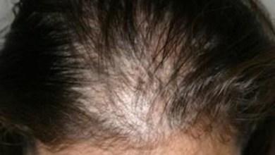صورة افضل علاج لتساقط الشعر