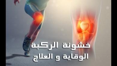 صورة علاج خشونة الركبة بالعسل