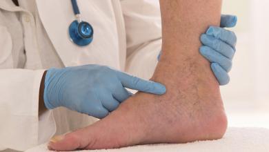 Photo of علاج دوالي الساقين بالليمون