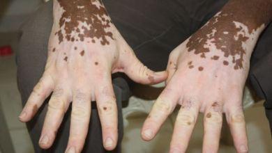 صورة علاج زيادة ونقصان صبغة الميلانين بالأعشاب