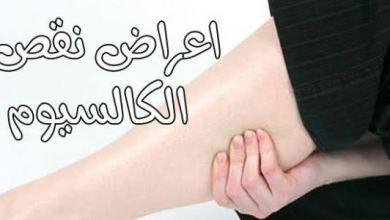 Photo of أعراض نقص الكالسيوم