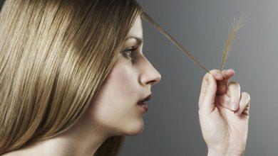 صورة علاجات سريعة لمشكلة تقصف الشعر
