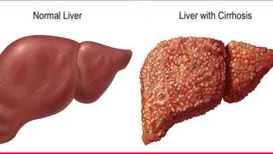 صورة ما هي أعراض تشمع الكبد