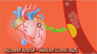 صورة كيف تحدث الذبحة الصدرية