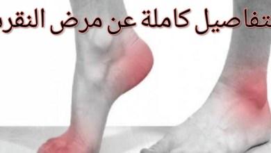 صورة أعراض النقرس في الرجل