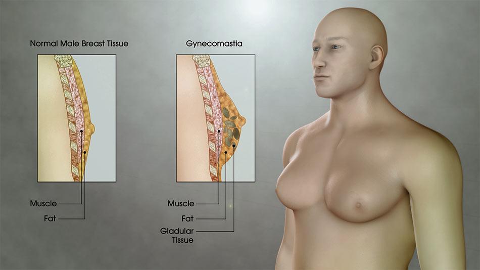 أسباب وعلاج التثدي عند الرجال