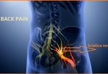 Sciatica nerve PICTURE