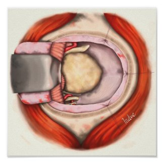 Craneotomía suboccipital lateral poster