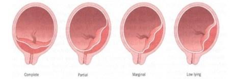 Classification of Placenta Previa