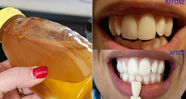 gargle-with-one-simple-ingredient-and-see-what-happens-to-your-teeth