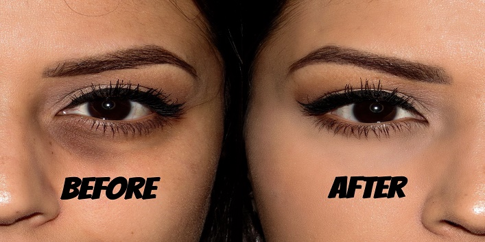 Top Four Ways to Get Rid of Crow's Feet & Wrinkles around Eyes