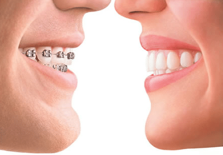 Dental_Insurance_plans