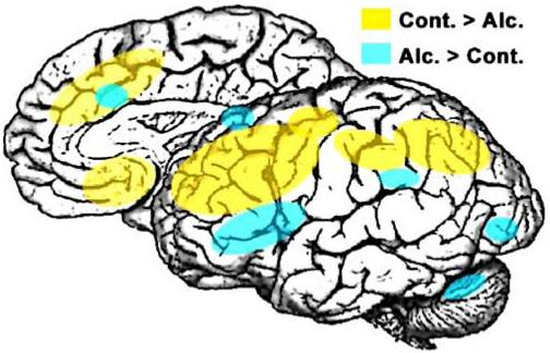 Effects of Alcohol in Brain