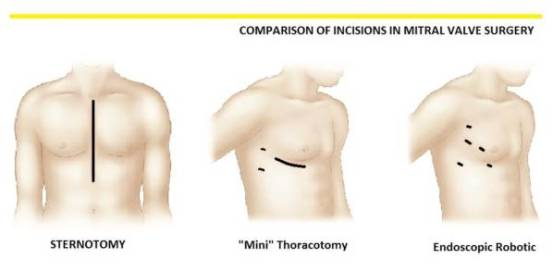 Comparison of Incisions in Mitral Valve Surgery