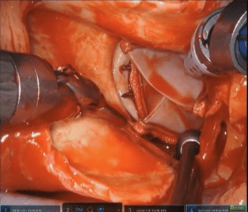 Robotic Aortic Valve Replacement T. Sloane Guy, M.D.