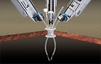 Intuitive Surgical receives all-clear from US government on robotic surgery system