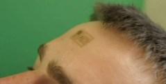 Elektronisk tatuering kan revolutionera vården