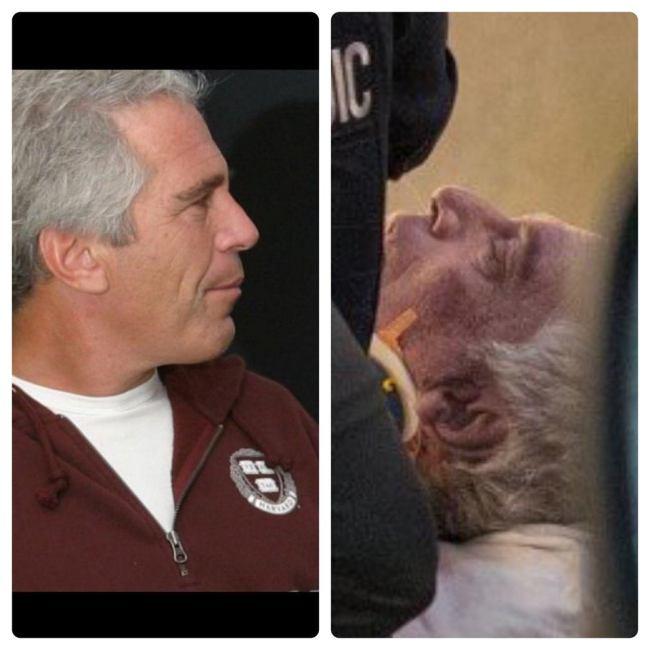 Federal prisoner Jeffrey Epstein (foto Before It's News)