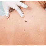 Are black moles dangerous