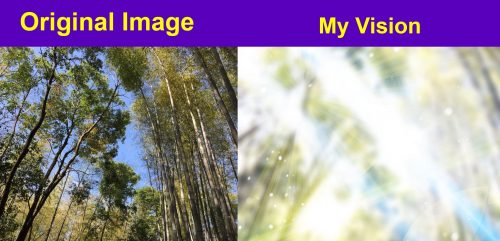 Left image: Original image - image looking up at trees on sunny day. Right image: My vision - Bright lights blurring out the trees