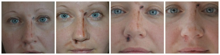 Mole Removal Healing 6