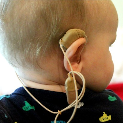 Alvys Hearing Aids2