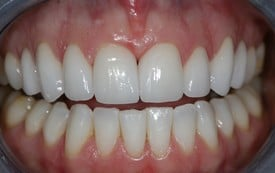 Straight teeth after smile makeover