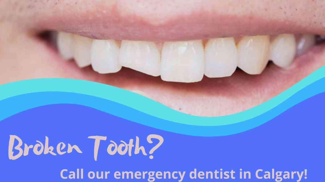 Broken Tooth_emergency dentist Calgary