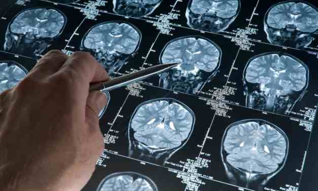 A $1 Billion Prize to Cure Alzheimer's?
