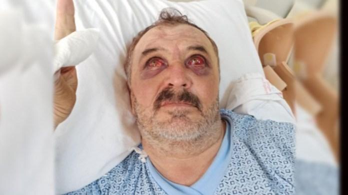 Jeté d'un hélicoptère de l'armée turque la semaine dernière, Osman Şiban a été conduit de force dans un hôpital militaire.